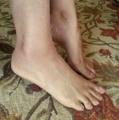 my sprained ankle is recovering